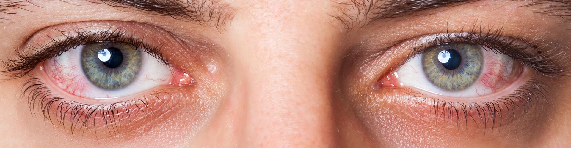 Droge ogen symptomen