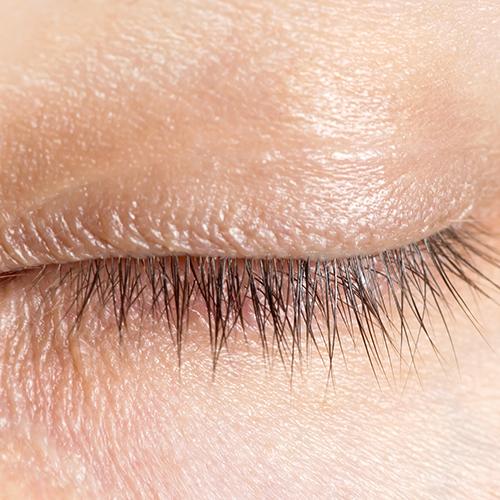 Voor gebruik bij ontstoken ooglid